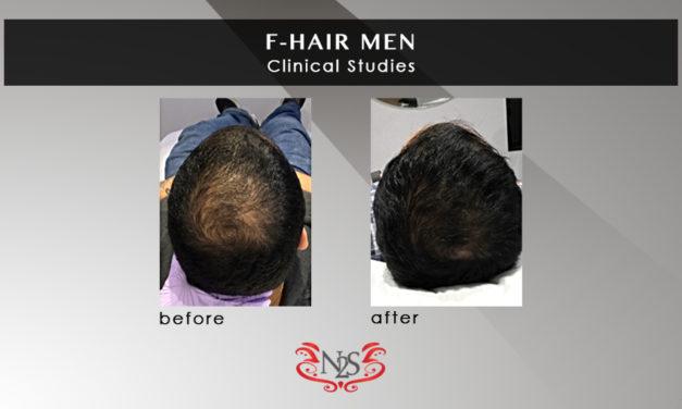 Clinical Study – F-Hair